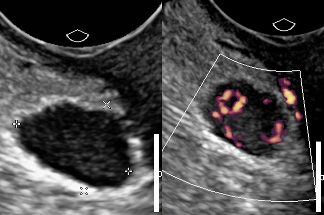 9 Image Of A Solid Adnexal Mass With Vascularity