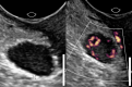 Image of A solid adnexal mass with vascularity