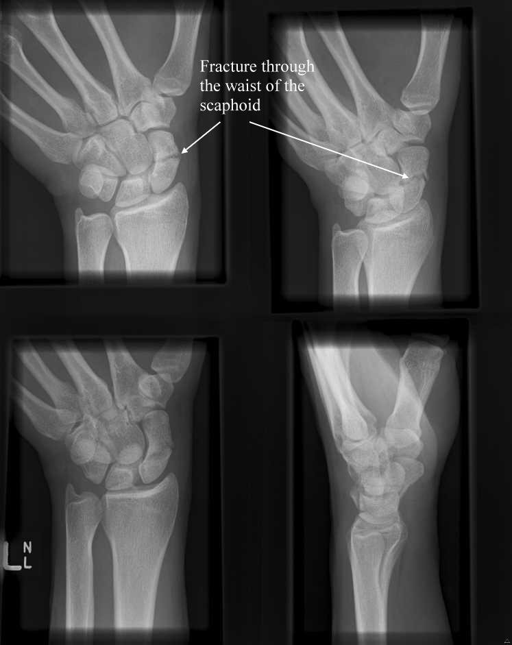 Scaphoid Fracture X Ray